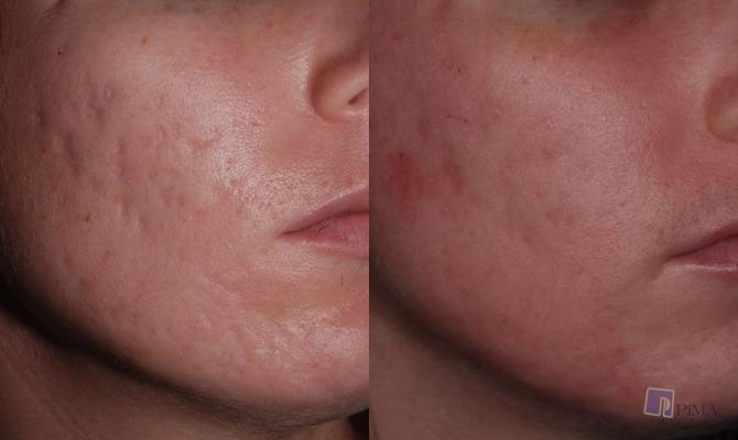 Acne Treatment By Tucson Dermatology Pimple Specialists