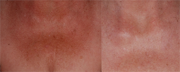 Poikiloderma Red Neck Treatment By Tucson Dermatologists