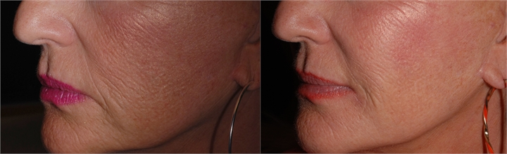 Treatment with JUVÉDERM® XC treating nasal labial folds, cheeks, and chin.