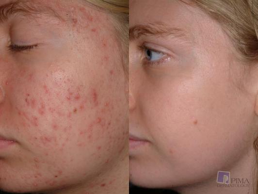 Acne Treatment By Tucson Dermatology Pimple Specialists